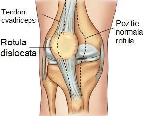 luxația semnelor articulației genunchiului