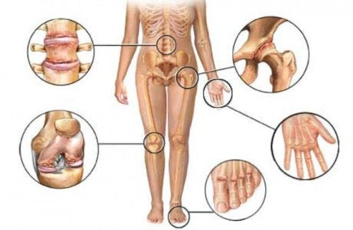 urechea doare din articulație durere umar stang cauze