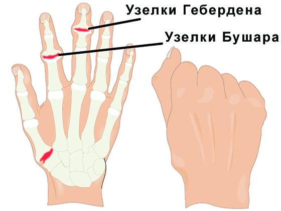 лечение артроза мазью для рук