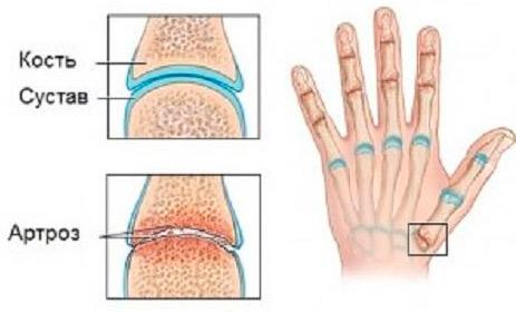 ce medicamente pentru tratarea artritei genunchiului
