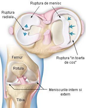 deteriorarea și ruperea meniscului articulației genunchiului