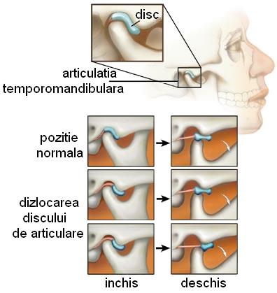 durere în articulația urechii