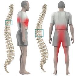 Durere de spate: tipuri, cauze si tratamente   Catena