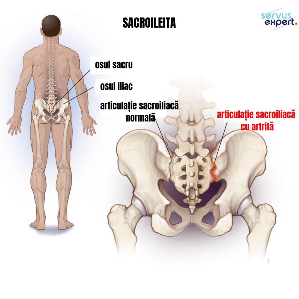 durere în cauzele articulației sacroiliace