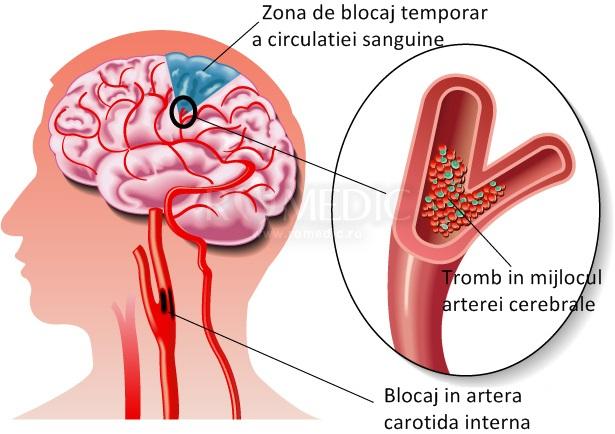 Accident vascular cerebral: Cauze si simptome ale infarctului cerebral   sfantipa.ro