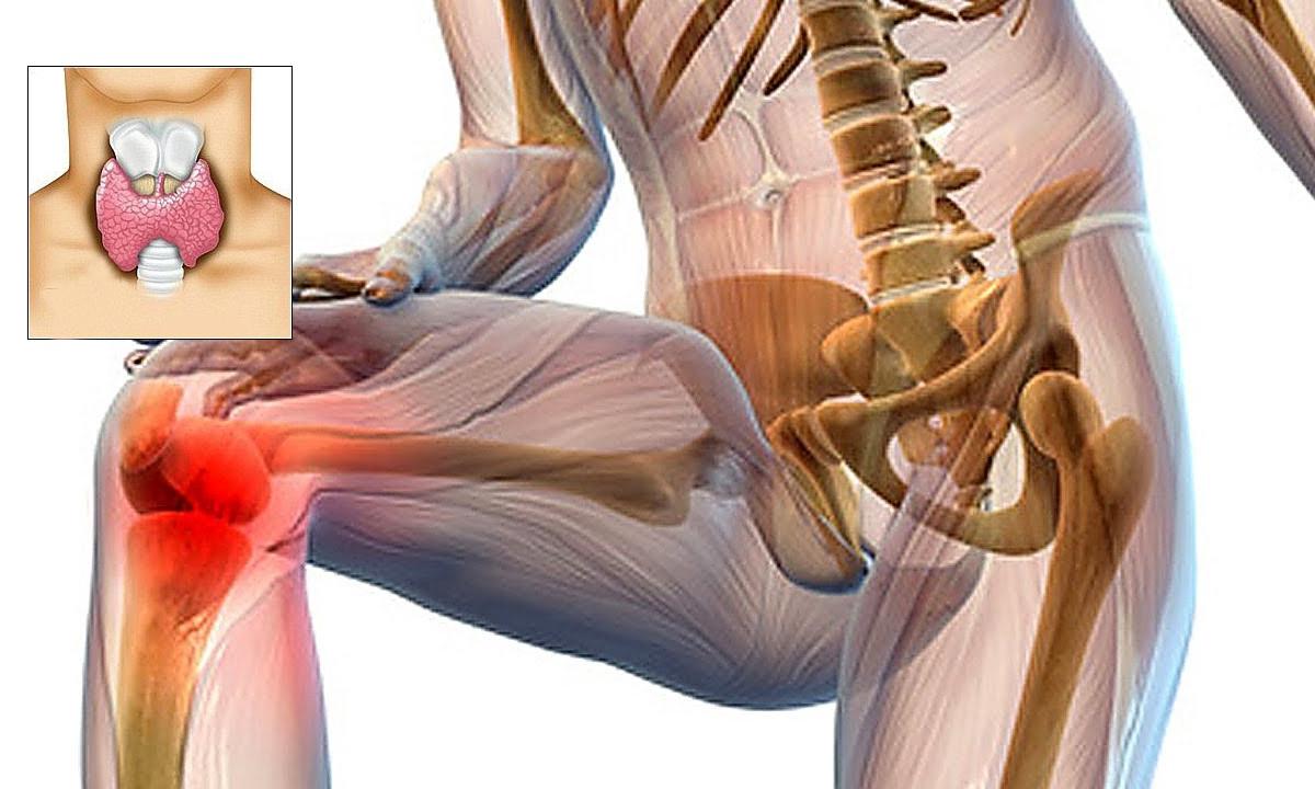 dureri articulare și slăbiciune generală