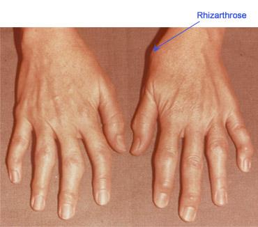 dureri articulare sub vârful degetului