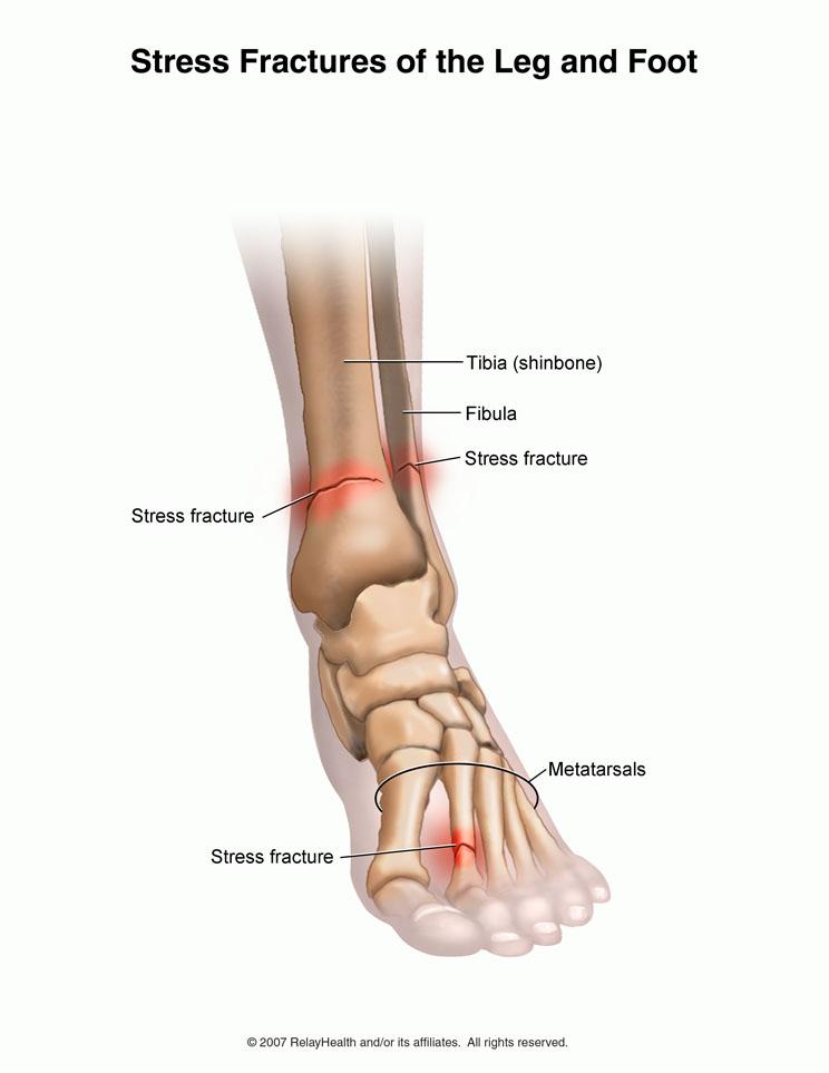 Dureri ale gleznei şi piciorului, Articulațiile piciorului doare după alergare
