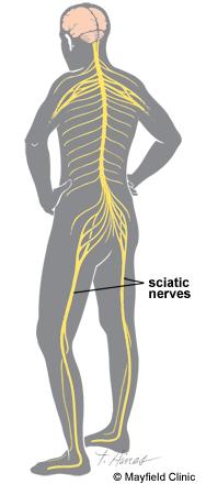dureri nervoase sciatice în articulația șoldului