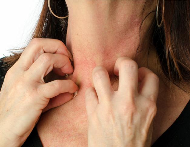 Mancarimi de piele – ce tipuri de cancer pot semnala