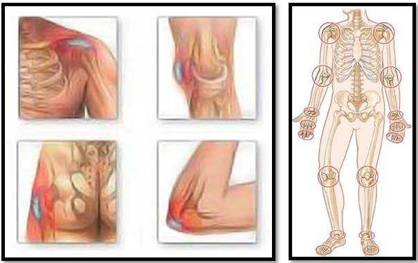 ce să faci atunci când articulația doare cum să tratezi articulațiile degetelor de la picioare