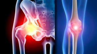 tratamentul artrozei genunchiului de mumie