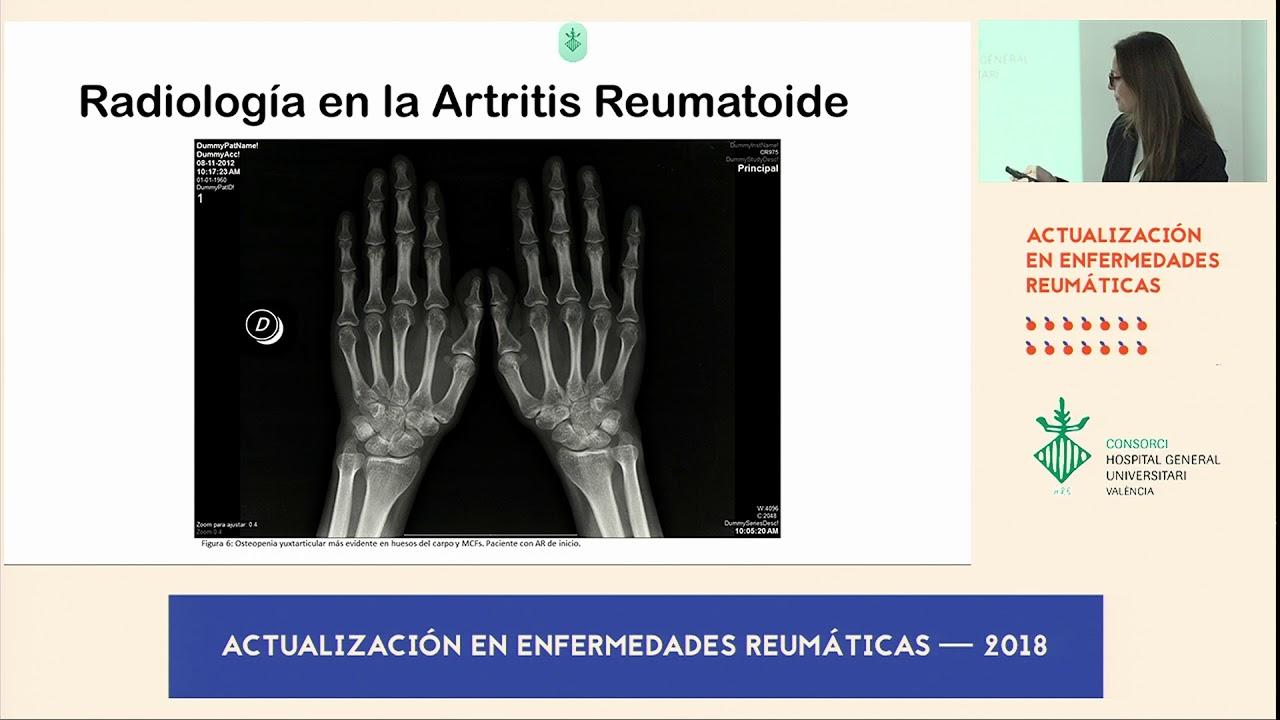 artrita artroso a arcadelor cusături durere în articulații