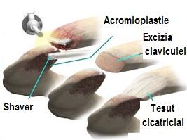 Durere cu artroza articulației șoldului