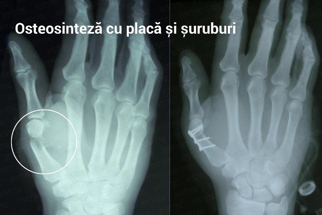 restaurare articulară după fractură