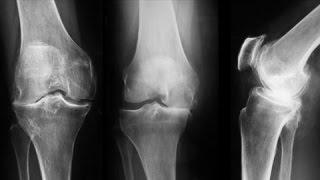 Este utilă înotul pentru artroza genunchiului?