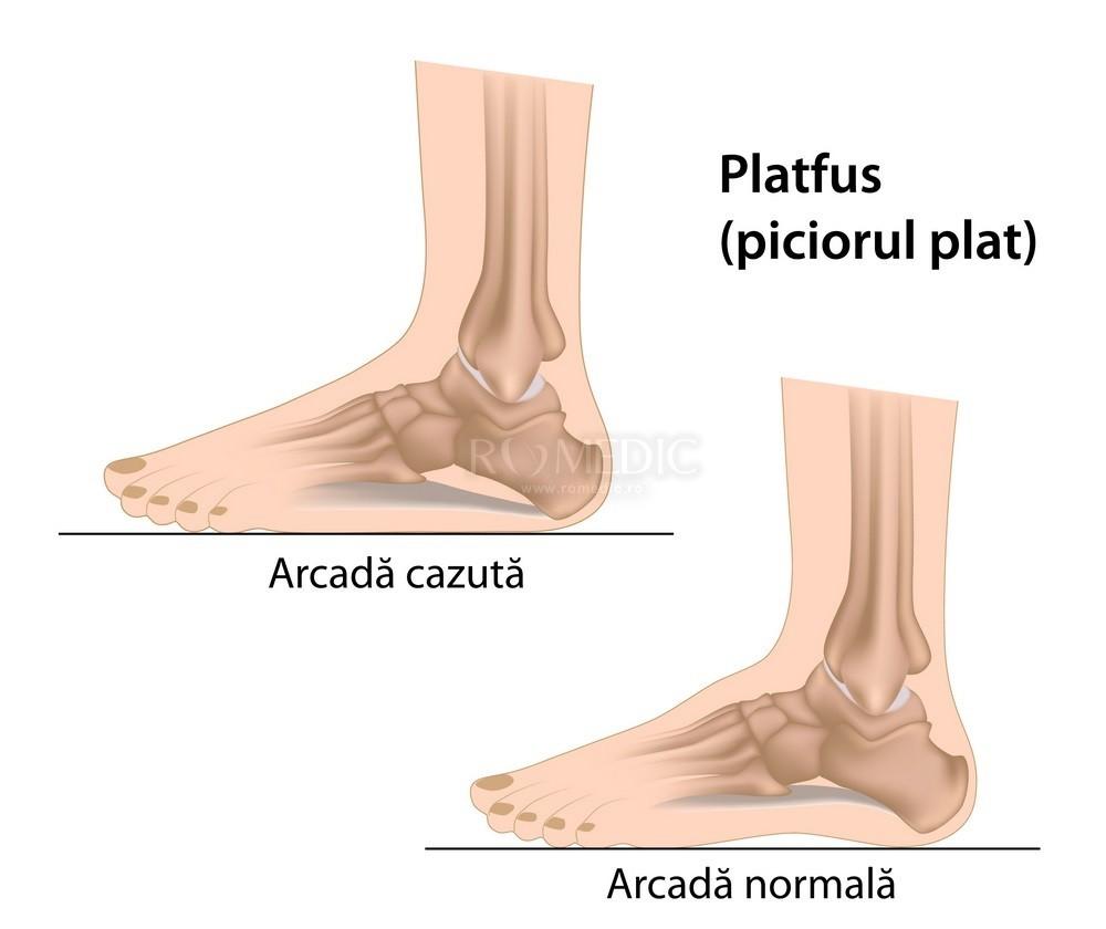 Simptome umflarea picioarelor (edem)