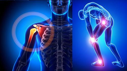 Asocierea durerii de sold cu dovezile radiologice de coxartroza