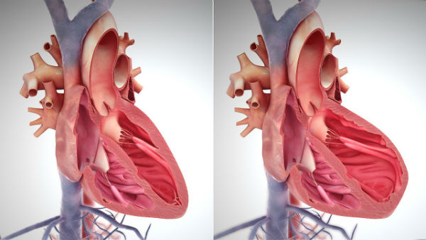 Cele mai frecvente boli ale sistemului cardiovascular