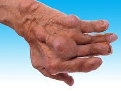 durere nimesilă în articulații dacă articulațiile din șolduri doare