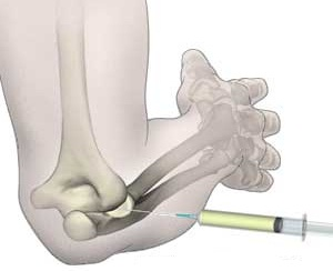 injecții pentru durere în articulațiile diprospan