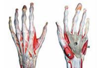 Ruptura de ligament colateral ulnar al policelui - Dr. Vladislav Gyebnar