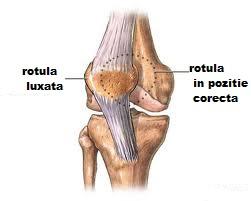 luxația și tratamentul genunchiului arthro plus recenzii de medicină comună