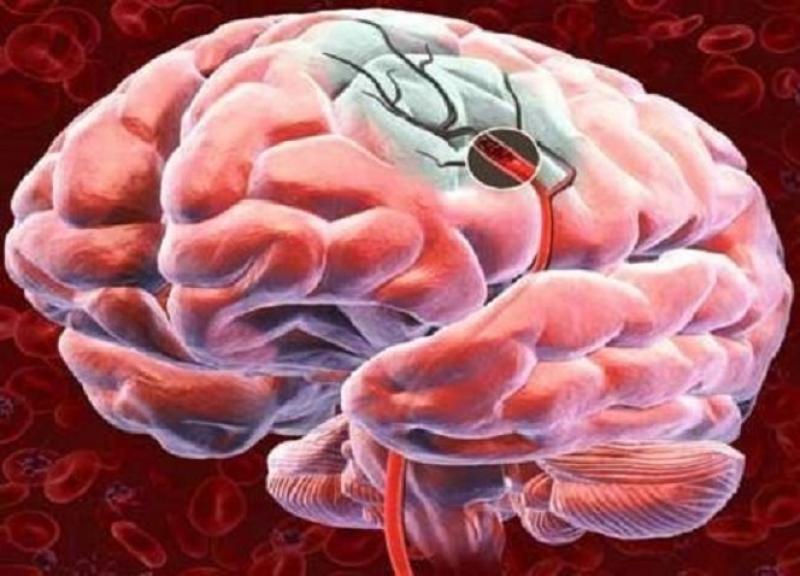 medicament pentru îmbunătățirea circulației cerebrale în osteochondroză