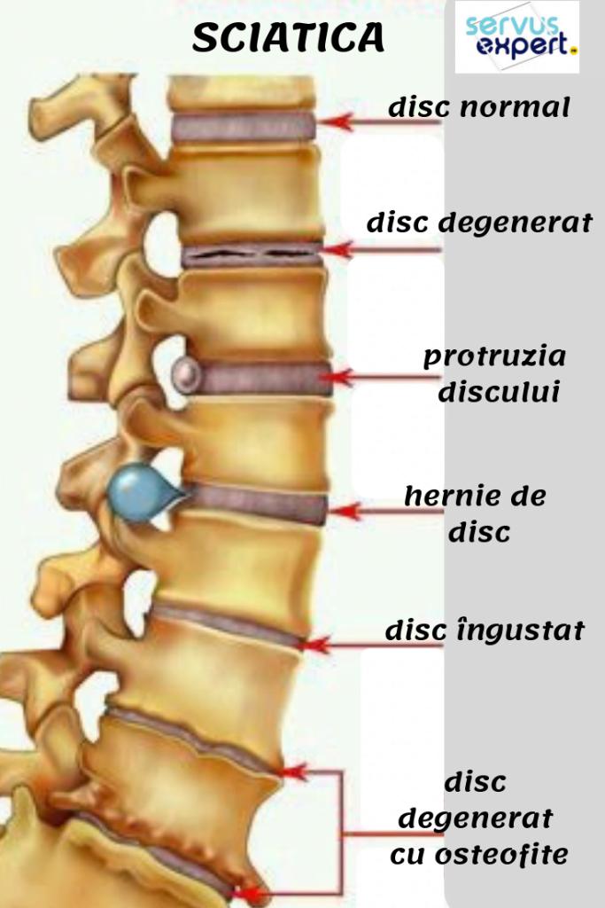 durerea din tot corpul doare articulațiile teraflex articulație