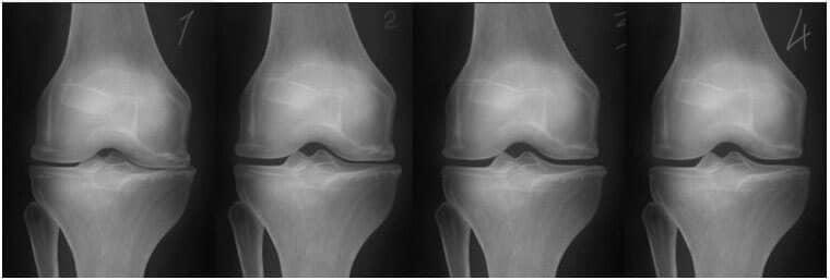 mi-au început să mă doară articulațiile cauza durerii în spatele genunchiului