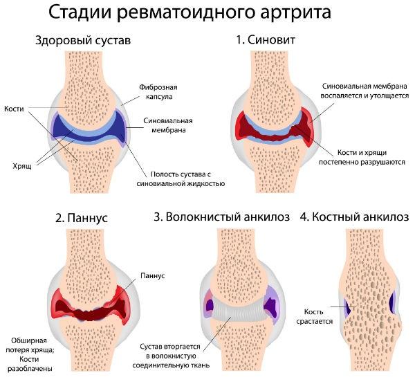 preparate care accelerează țesutul cartilaj durere în articulațiile picioarelor fără febră