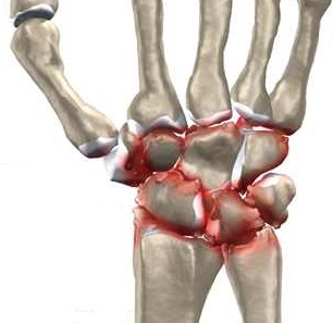 pregătirea comună pe o tratament cu tulpină de artroză
