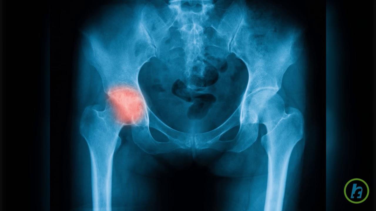 picior dureros în genunchi și articulația șoldului virusul durerii articulare