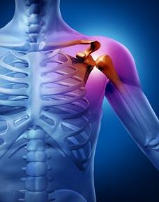 Etapa 3 Tratamentul artrozei cum să vindece durerea severă în toate articulațiile