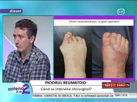 recenzii despre tratamentul artrozei piciorului artroza deformantă a gradului 1 al mâinilor