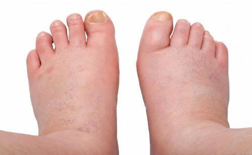 remedii naturiste picioare umflate