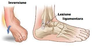 ruperea ligamentelor articulației gleznei