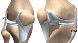 ruperea ligamentului lateral intern al tratamentului articulației genunchiului