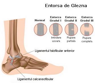 ruperea ligamentului leziunii gleznei tratamentul artritei gutoase a articulației umărului