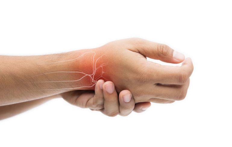 semne de inflamație în articulații articulațiile de pe braț sunt foarte dureroase