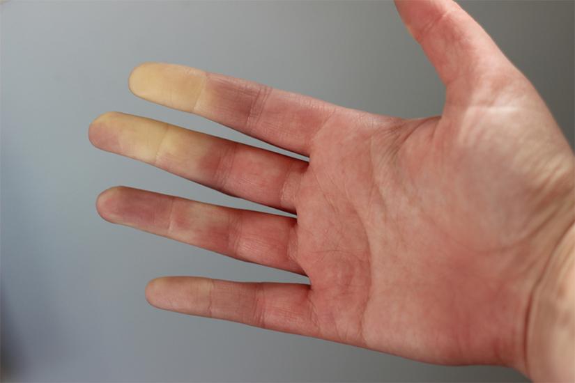 pentru comprimate teraflex pentru dureri articulare artroza în tratamentul vârstnicilor