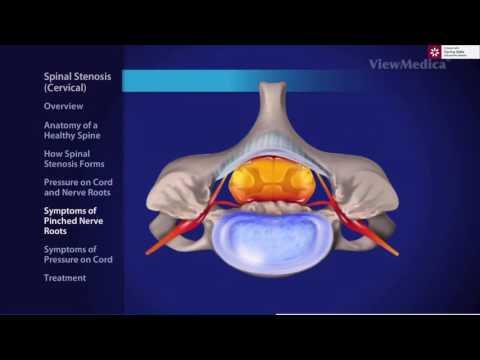 Tehnici de tratament articular și spinal