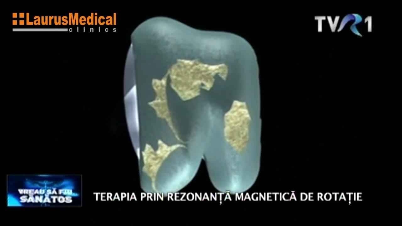 tratament cu artroză magnetică tratamentul eficient al displaziei de șold