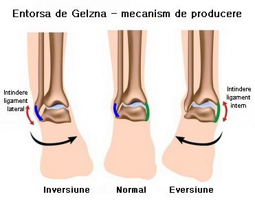 tratament de entorsă la picior