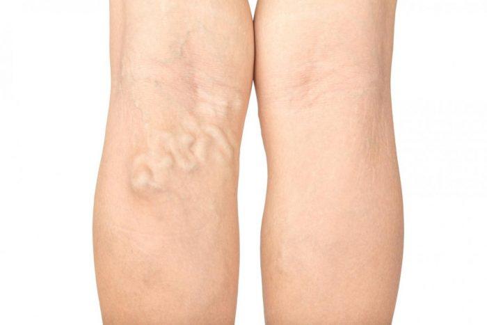 Tratamentul articulației Chișinău dureri la nivelul genunchiului și luxație