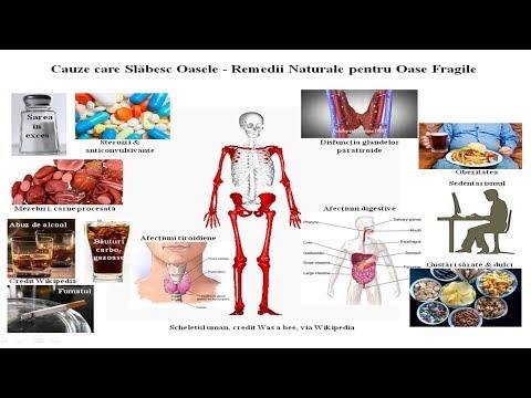 medicamente sau unguente pentru osteochondroza mamară lista de geluri articulare