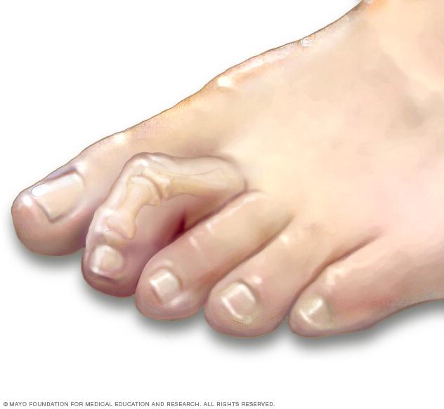 artrita dermatita cum să tratezi articulațiile picioarelor rănesc preparate