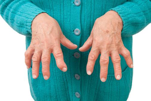 tratamentul artritei posttraumatice la încheietura mâinii