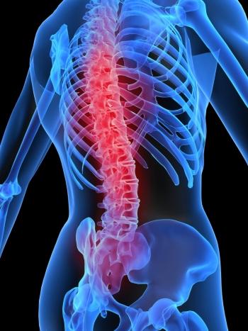 tratamentul bolilor coloanei vertebrale și articulațiilor cu karipaină gel de oaie pentru vene și articulații