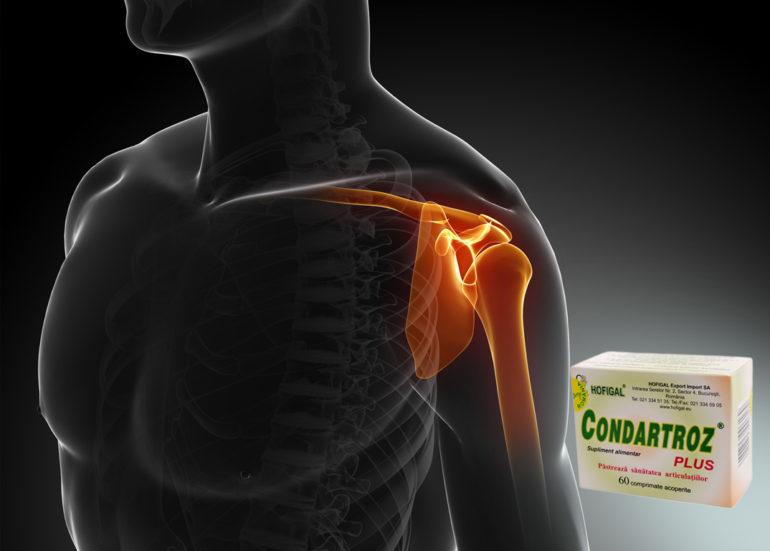 tratamentul de blocaj al artrozei umărului unguent de steroizi pentru articulații